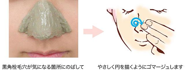 黒角栓毛穴画像でチェック!鼻の毛穴黒ずみの原因・対策