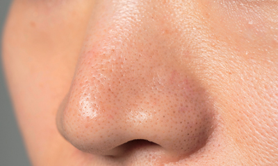 【詰まり毛穴画像あり】鼻の角栓詰まりケア方法