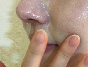ReFaのホットクレンジングで毛穴レス肌を目指す