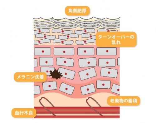 寒暖差によるストレスが原因?シワやニキビなどの肌荒れ