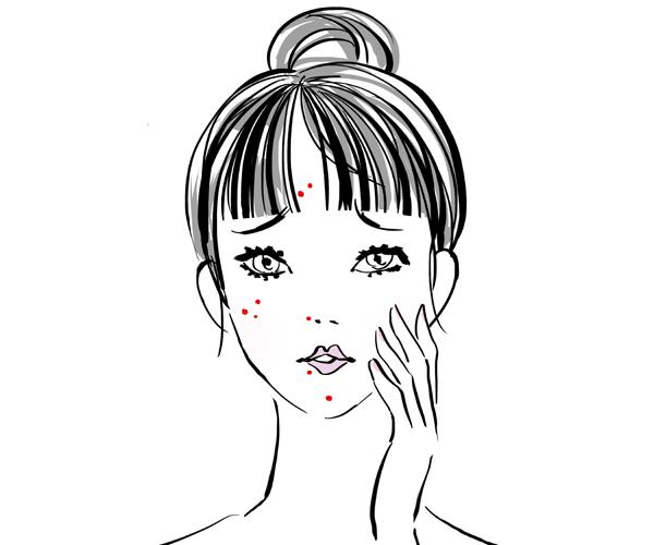 ニキビ 痛い 眉毛