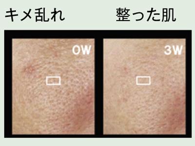 の を 肌 整える キメ 肌のキメを細かくする方法とは?整えるための洗顔方法や効果的な化粧水・食べ物って何?