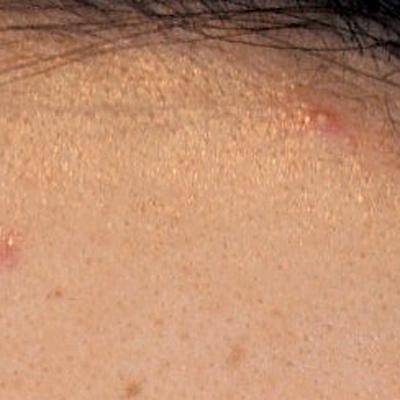 白ニキビはまだ初期段階!悪化する前に即効ケアして!皮膚科医や