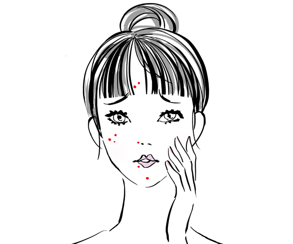 おでこ、頬、鼻、口周りなどニキビの場所別の原因とは?