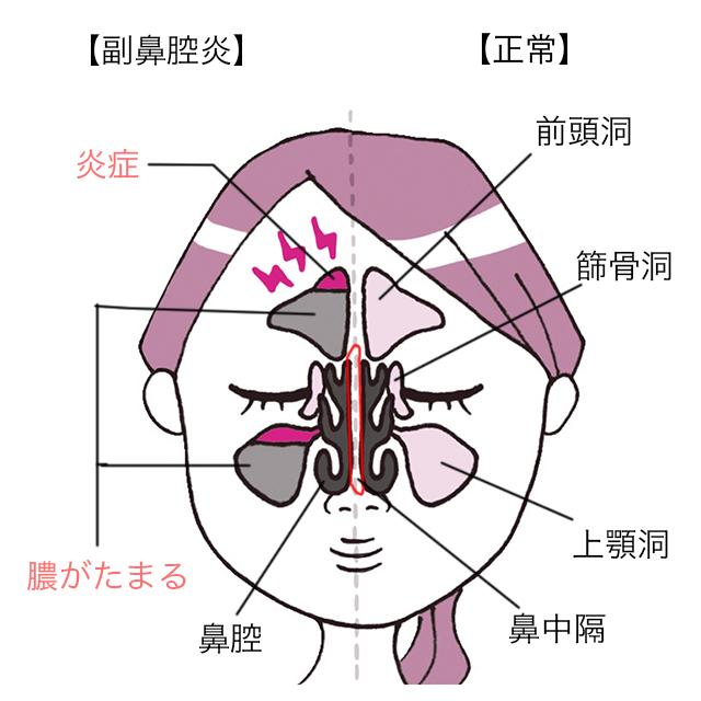 副 鼻腔 炎 治す ツボ