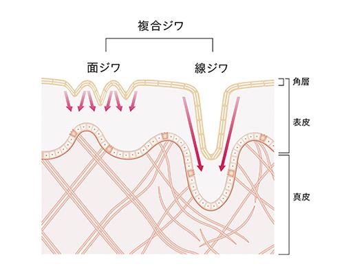 揺ぎがちな肌のシワの構造
