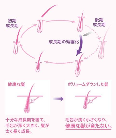 女性の抜け毛のサイクルとは?頭皮を整えるシャンプーを!
