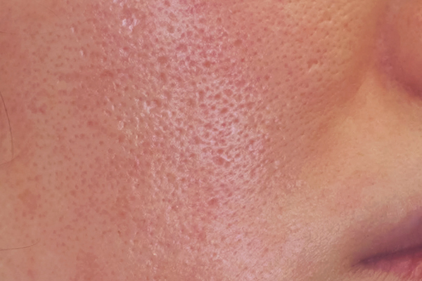 小鼻や頬の毛穴とその周りが赤く、メイクが決まらない…【炎症毛穴】