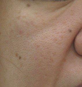 汚い肌の元凶、毛穴のトラブルはどうして目立ってしまうの?