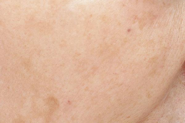 """お悩みNo.1はダントツ""""シミ""""汚い肌を美容医療で改善!"""
