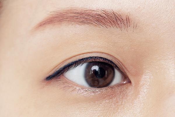 shiseido-before